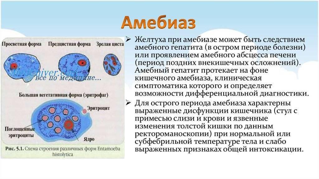 амебная дизентерия симптомы