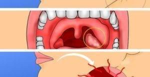 Если болят гланды (миндалины): с одной стороны или обе. чем лечить?