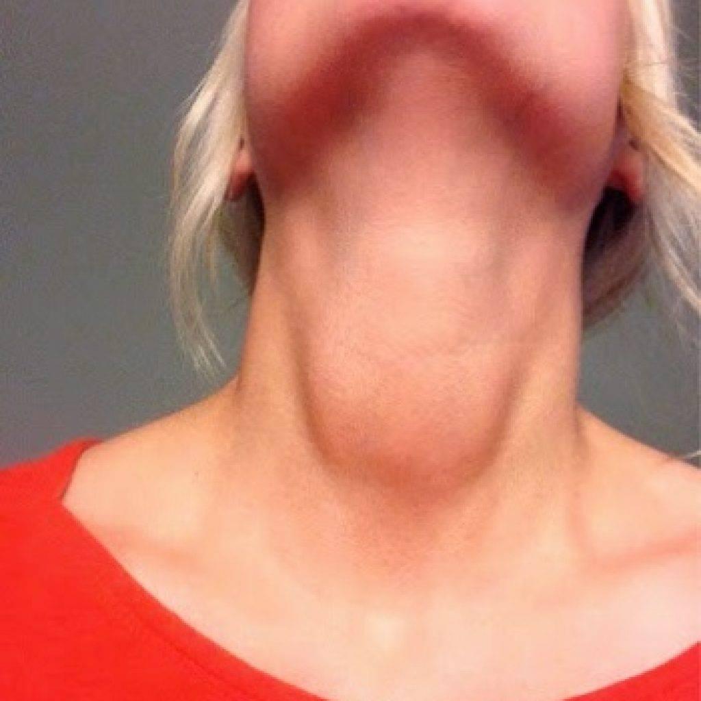 диффузный зоб щитовидной железы
