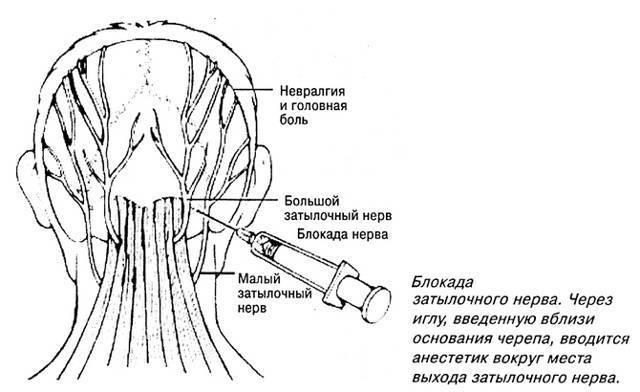 Невралгия затылочного нерва: почему нужно лечить синдром?