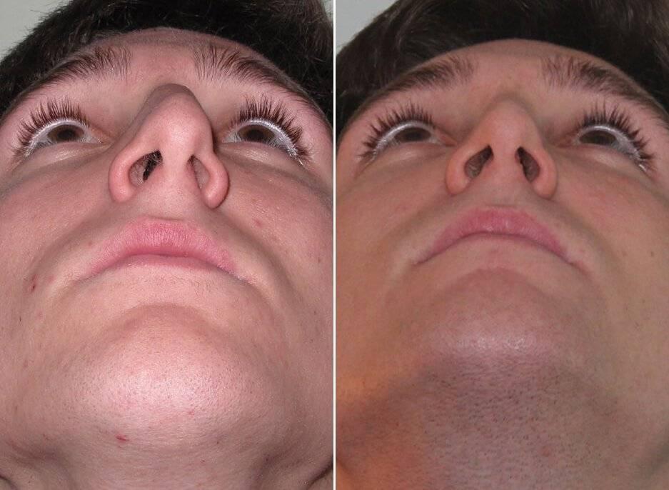 Что такое репозиция костей носа?