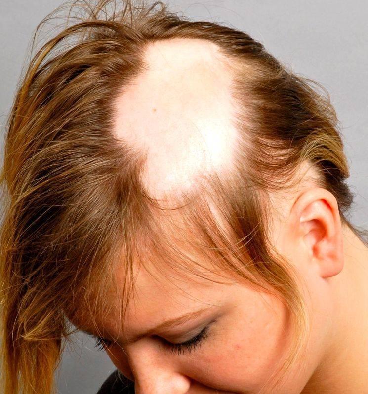 псориаз на голове выпадают волосы