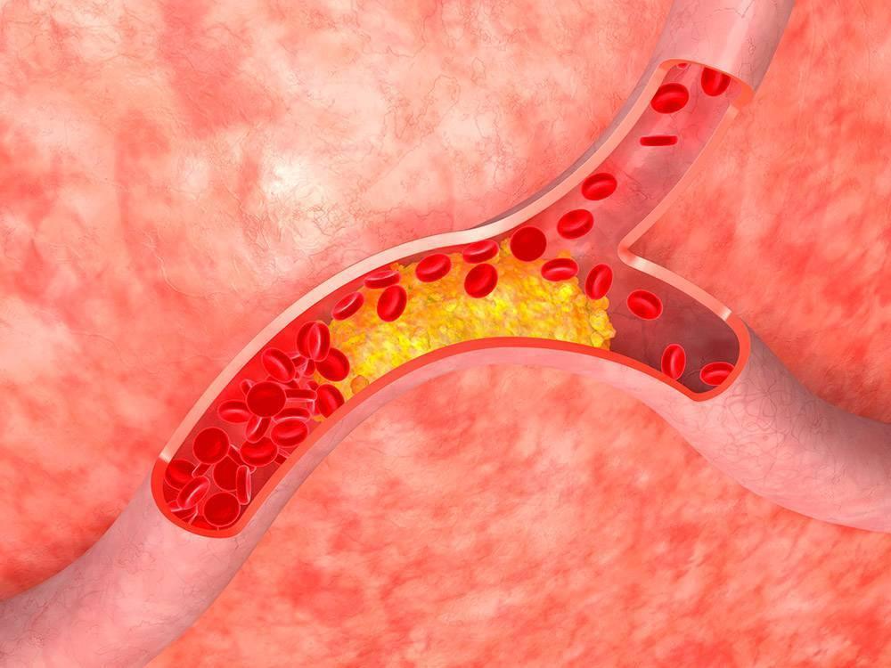 Атеросклероз ног лечение — лечение диабета