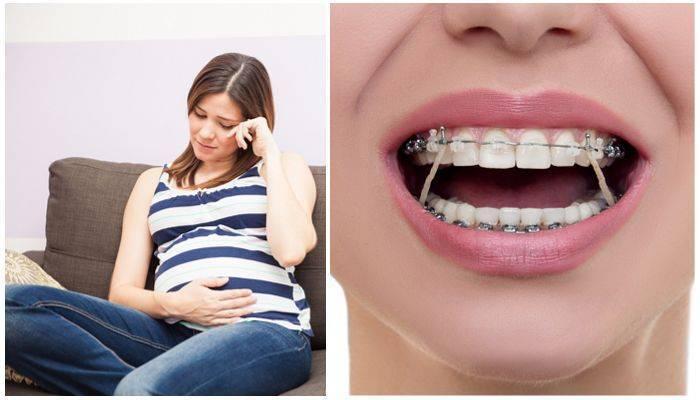 можно ли ставить брекеты при беременности