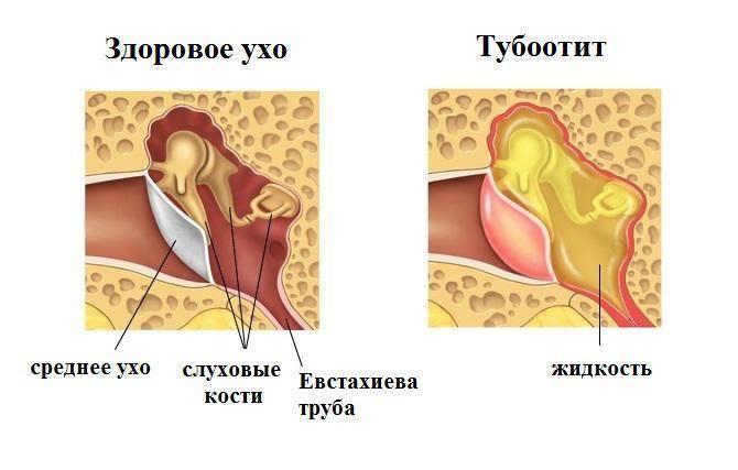 тубоотит симптомы лечение