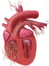 Гельминты в сердце человека