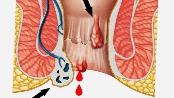 Внутренний геморрой с кровотечением