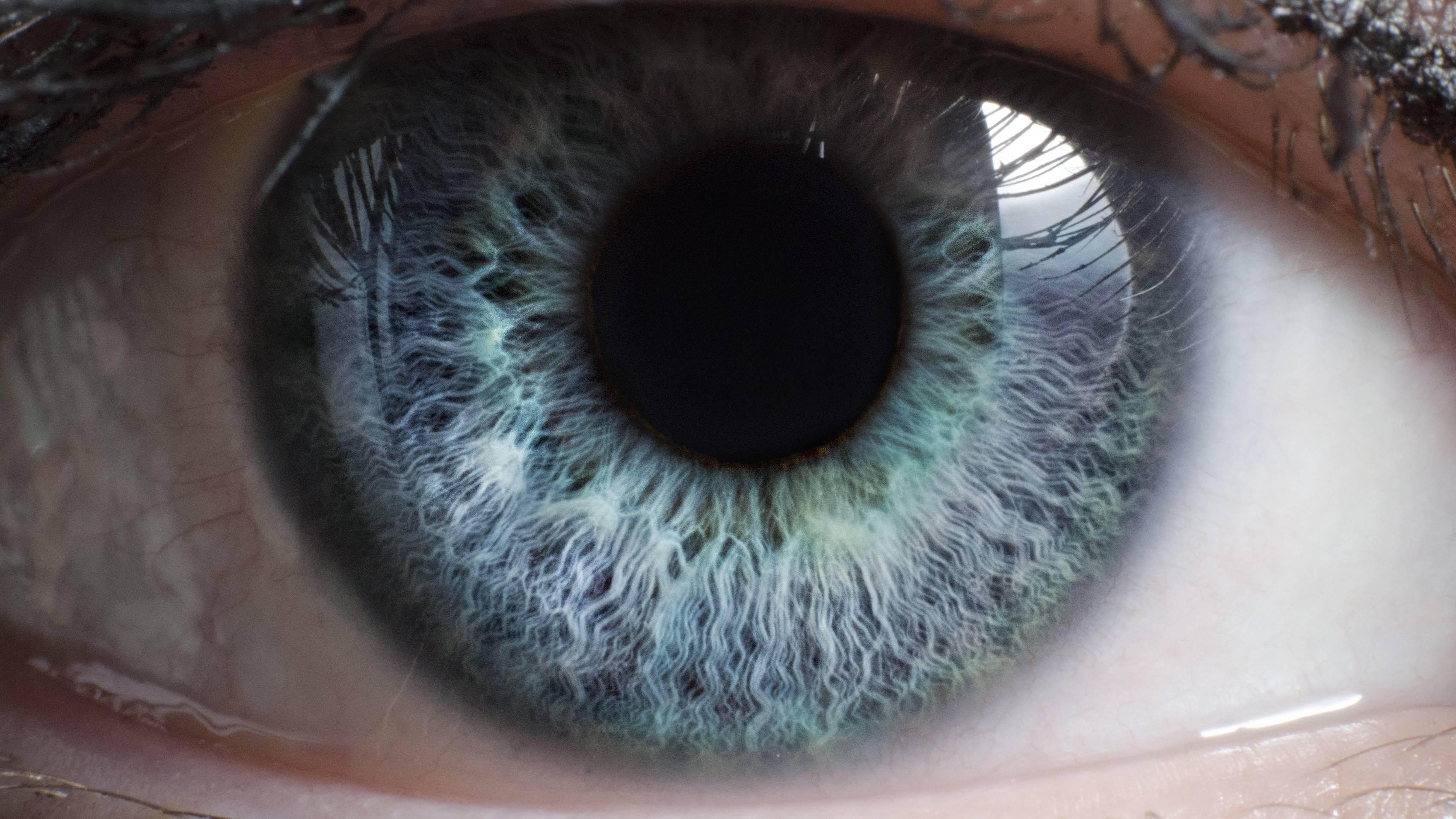 Тонкая роговица глаза