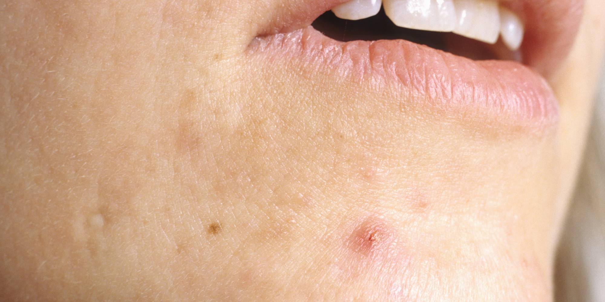 Герпес на лице: симптомы, причины, лечение (медикаментами, народными средствами), особенности при беременности, осложнения и последствия (фото, видео)