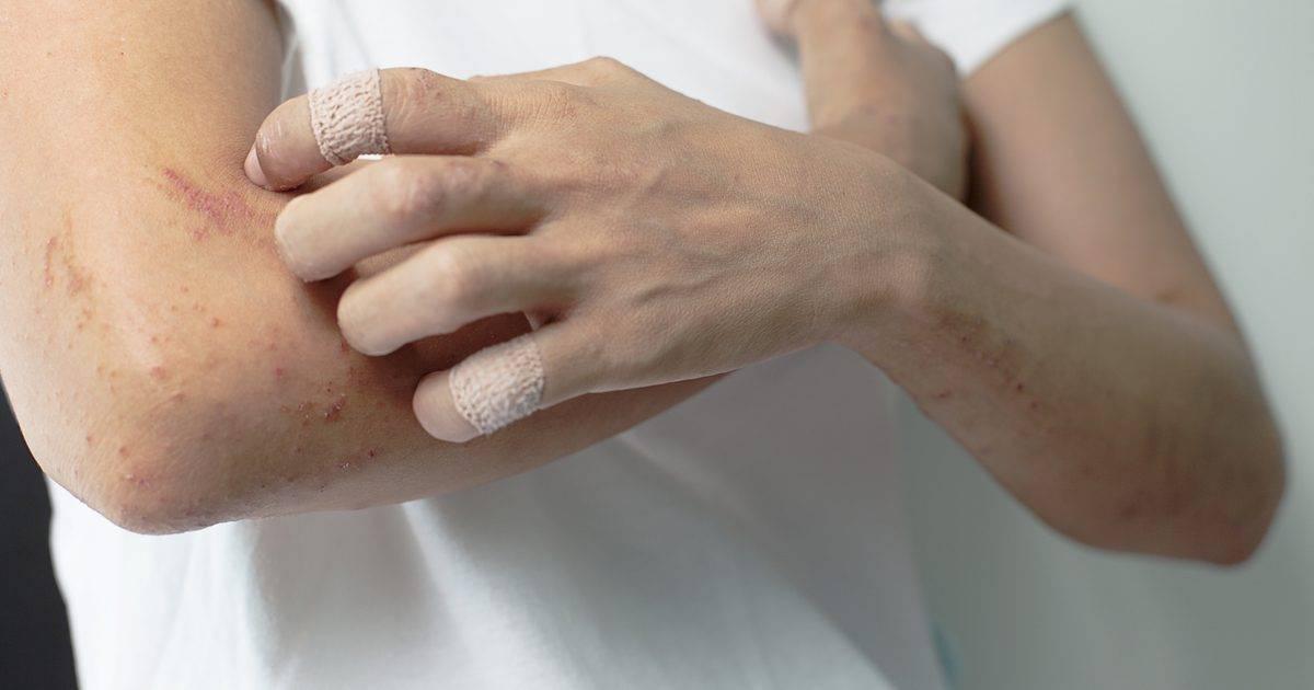 зуд при дерматите лечение