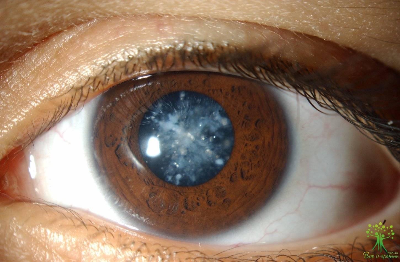 мутное зрение причины