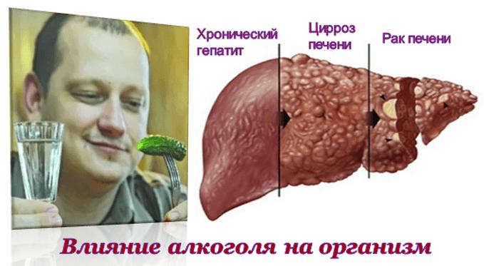 Симптомы и последствия алкогольного цирроза печени