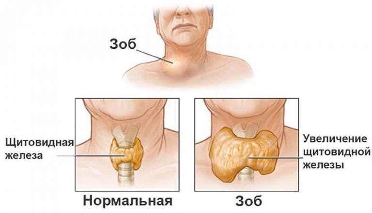 Увеличенная щитовидная железа у ребенка 7 лет | про щитовидку