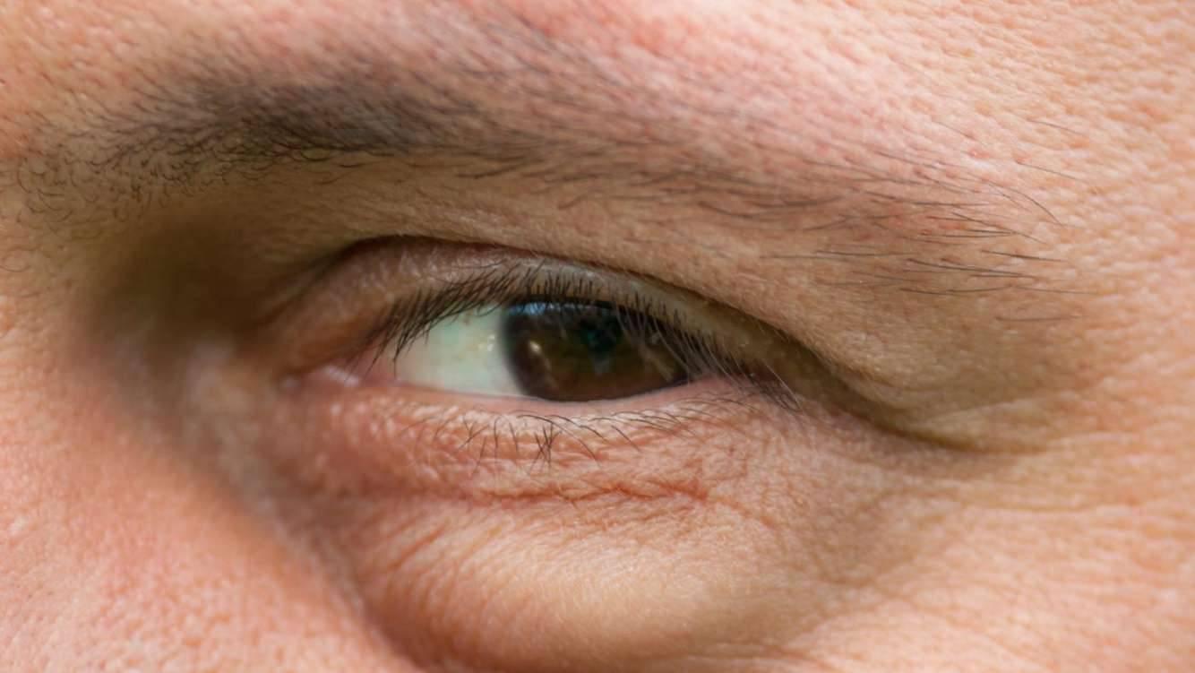 Почему болят веки над глазами