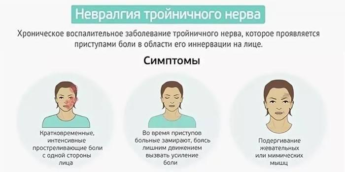 признаки невралгии у женщин