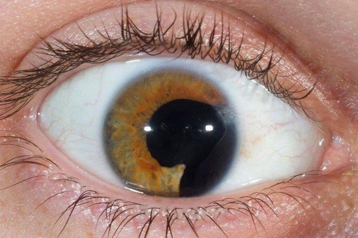 колобома глаза