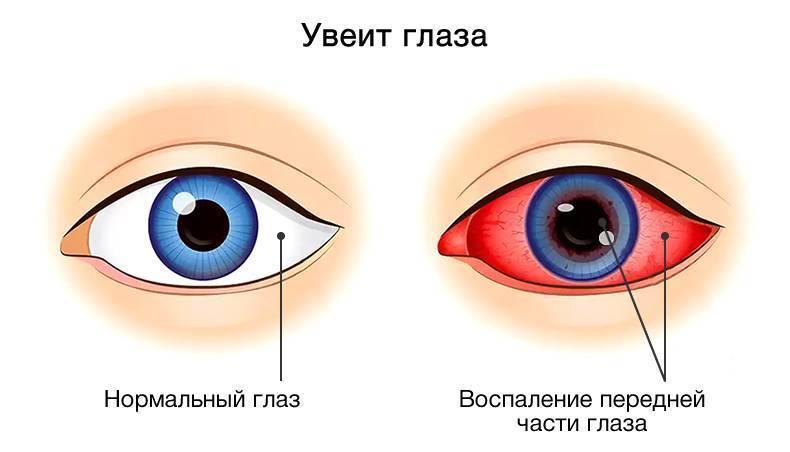 Увеит глаза (симптомы, диагностика, лечение)