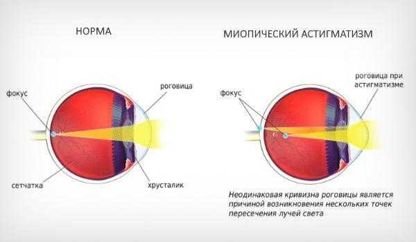 Миопический астигматизм - сложная и простая форма обоих или одного глаза