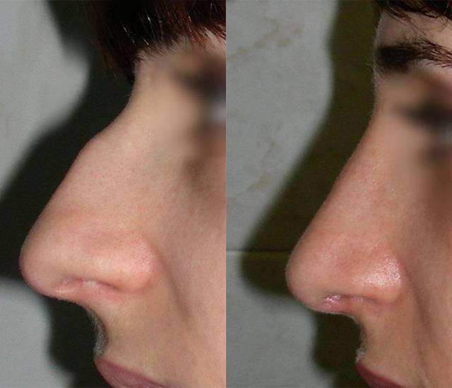 Нос покраснел и воспалился. какими могут быть причины воспаления кончика носа