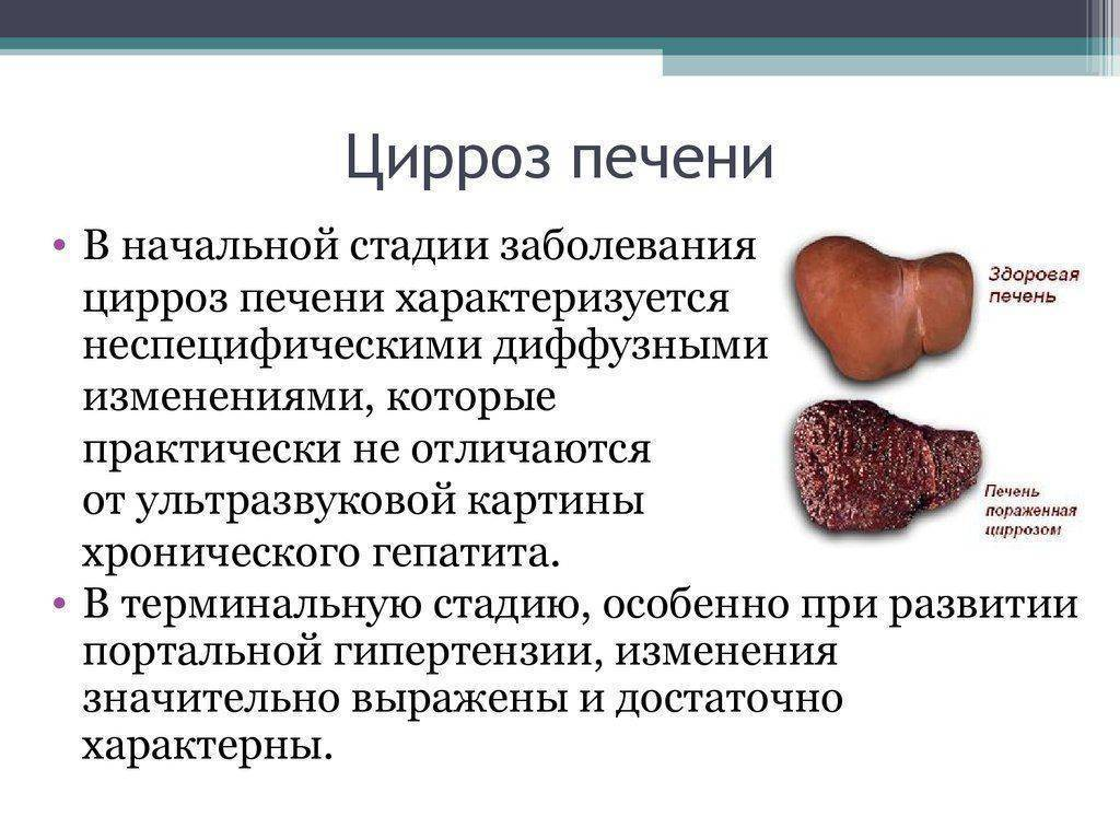 Цирроз печени у женщин: причины, первые признаки, симптомы и лечение
