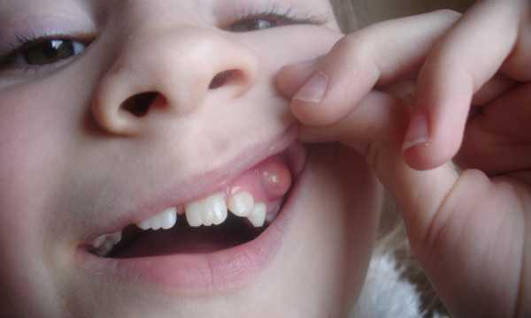 Почему образуется киста на миндалине?