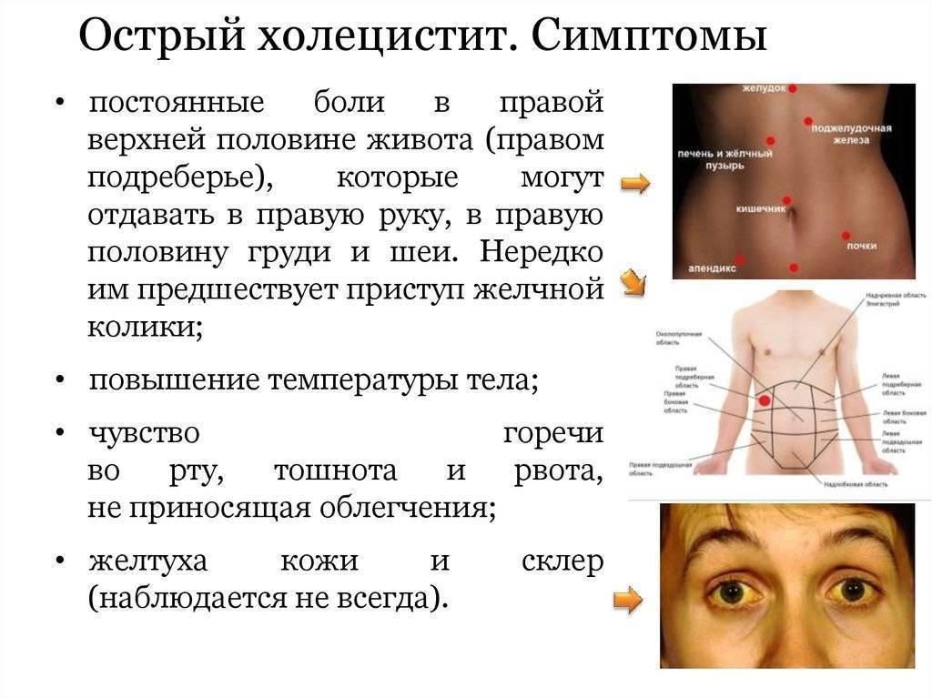 Острый холецистит – симптомы, лечение, диета, диагностика