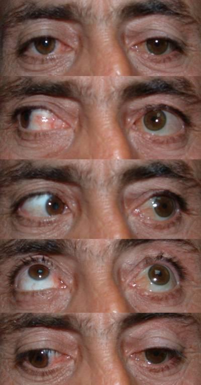 Удаление глаза. операция удаление глаза в москве