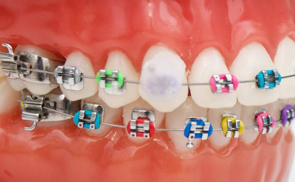 воск стоматологический для брекетов