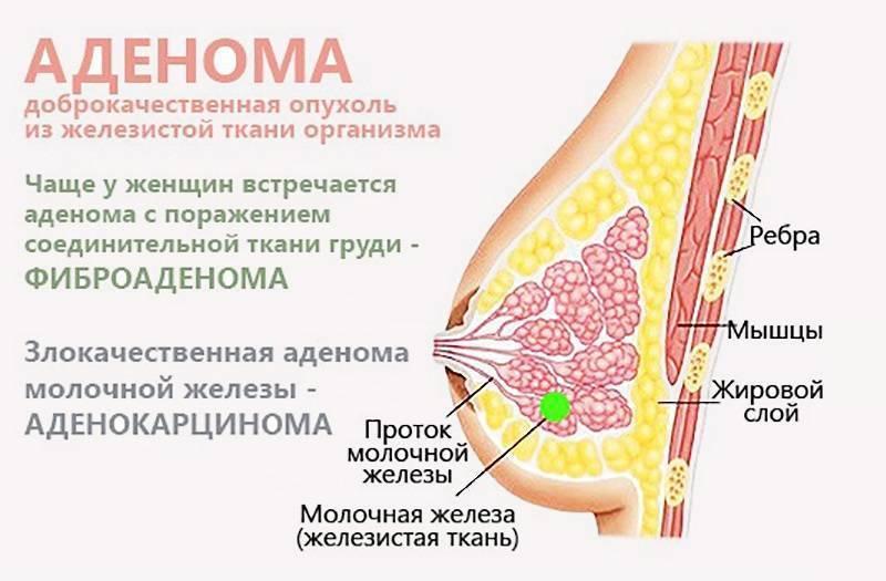 болезненность молочных желез причины