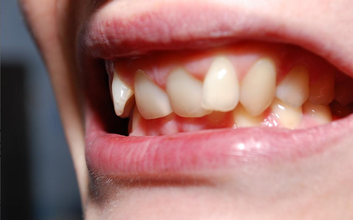 почему молочные зубы растут криво