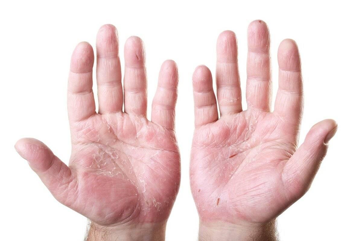 Как вылечить дерматит на руках у ребенка