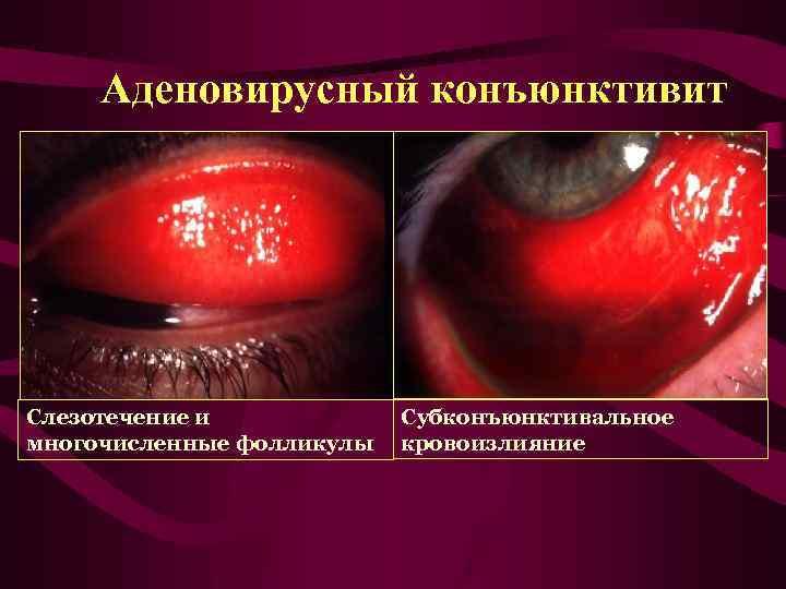 Аденовирусный конъюнктивит: причины заболевания, основные симптомы, лечение и профилактика