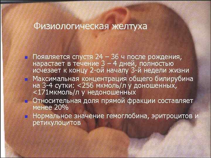 Новорожденный болен желтушкой: все, что нужно знать маме