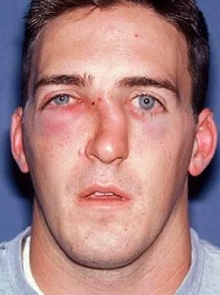 как узнать сломан нос или нет