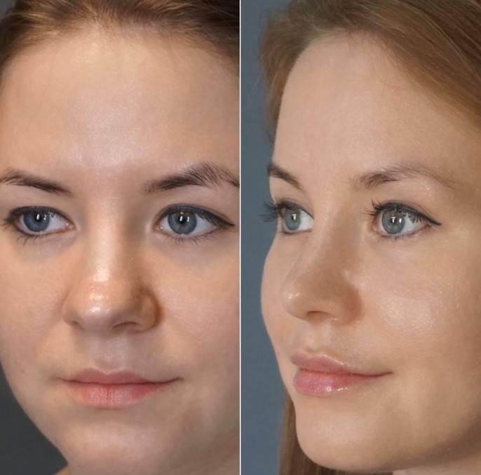 исправление кончика носа