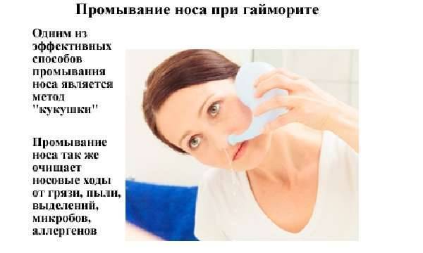 лечение гайморита в домашних условиях у беременных