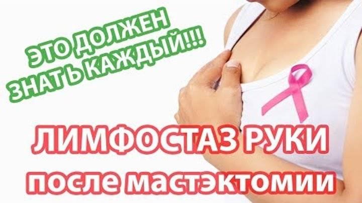 Лимфостаз после удаления молочной железы