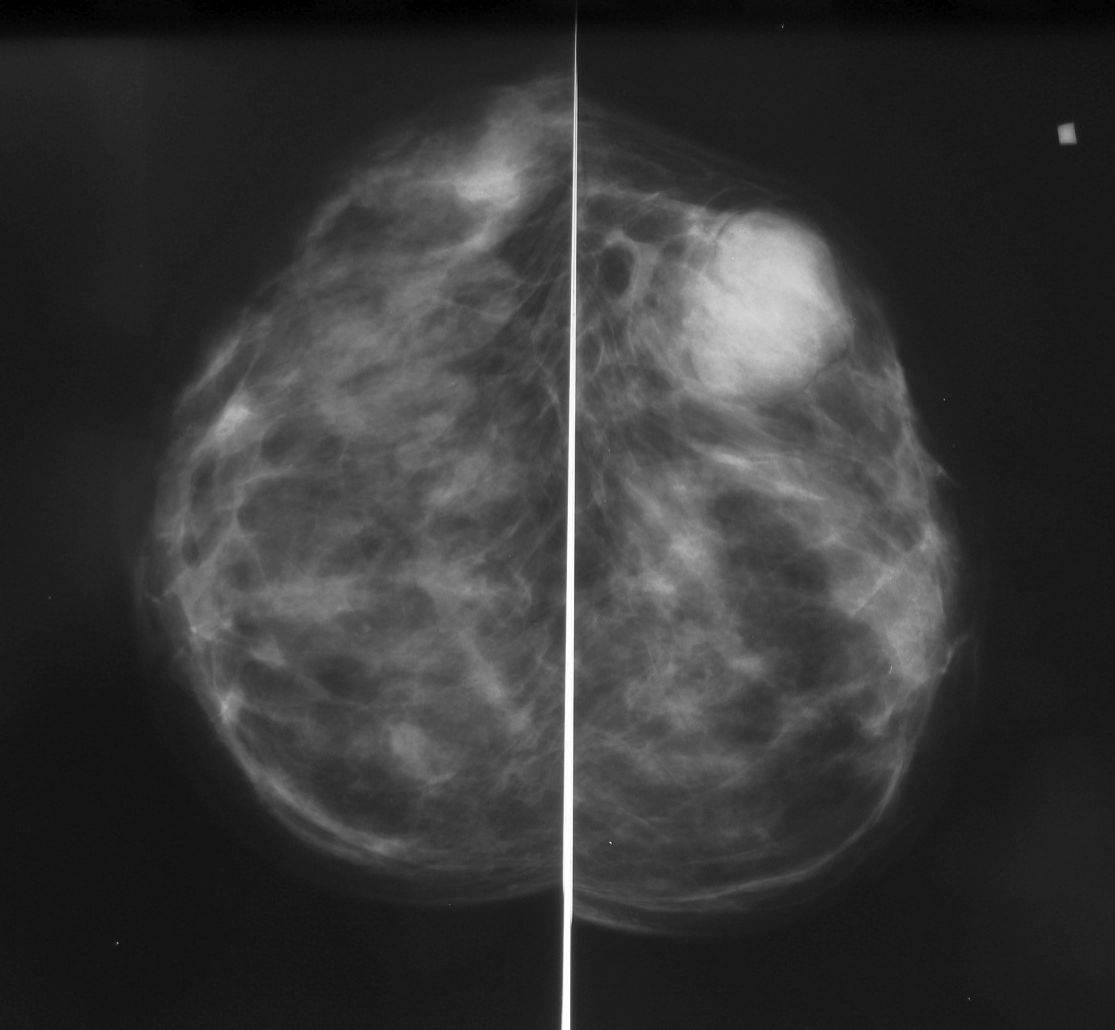 маммография или узи молочных желез что лучше после 40 лет