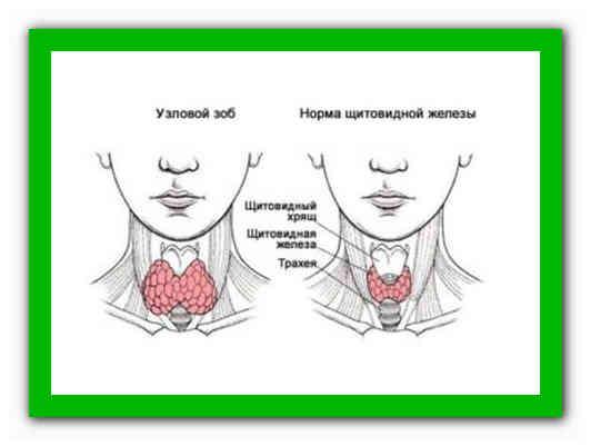 узловая щитовидка лечение народными средствами