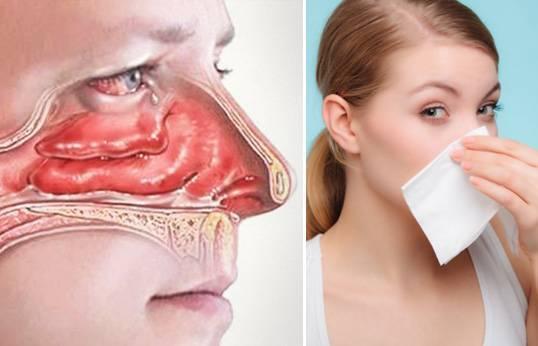 чем снять отек в носу при насморке