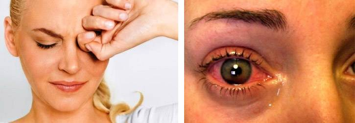 как определить глазное давление в домашних условиях
