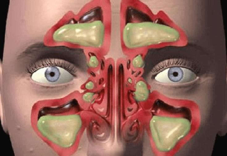 Причины возникновения гнойного гайморита, его симптоматика, лечение, возможные осложнения