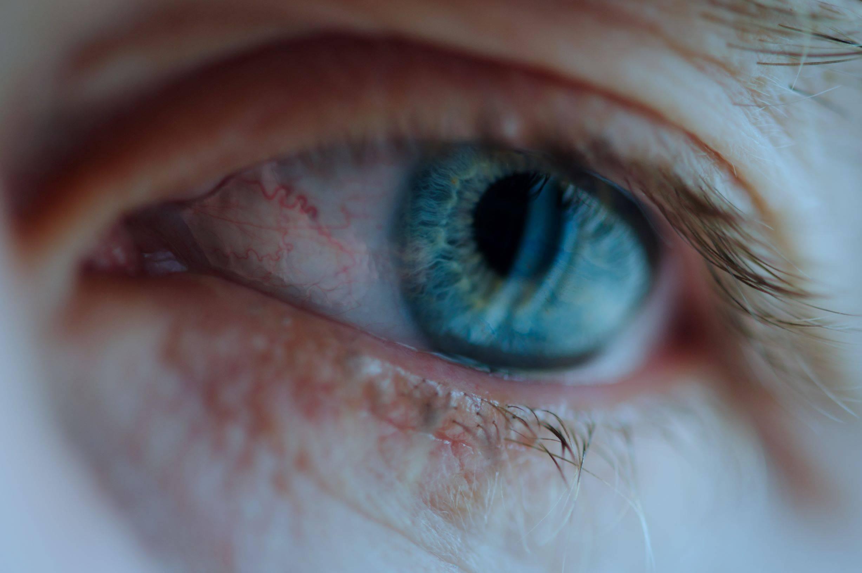 Эписклерит — симптомы и лечение