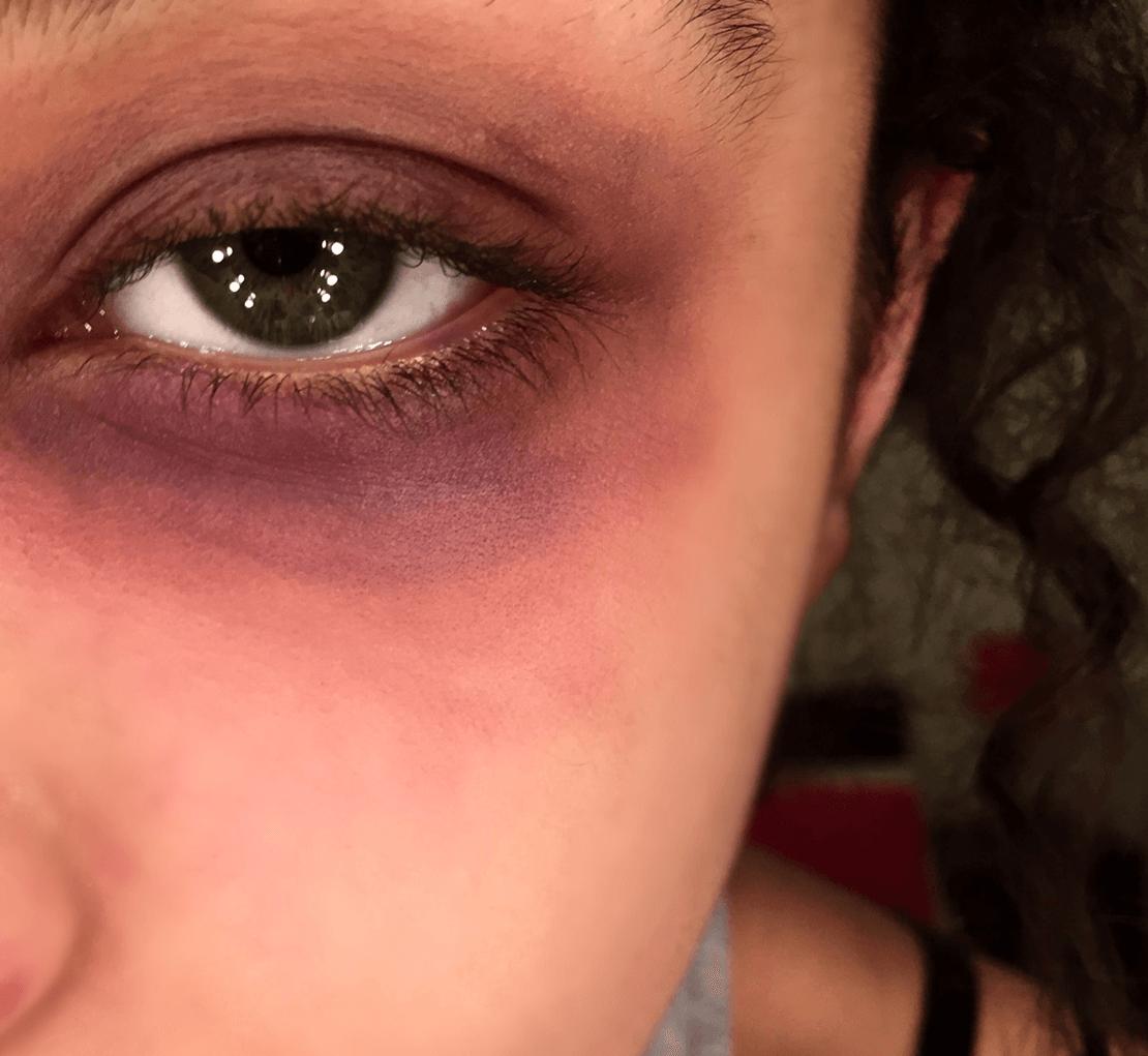 гематома на глазу