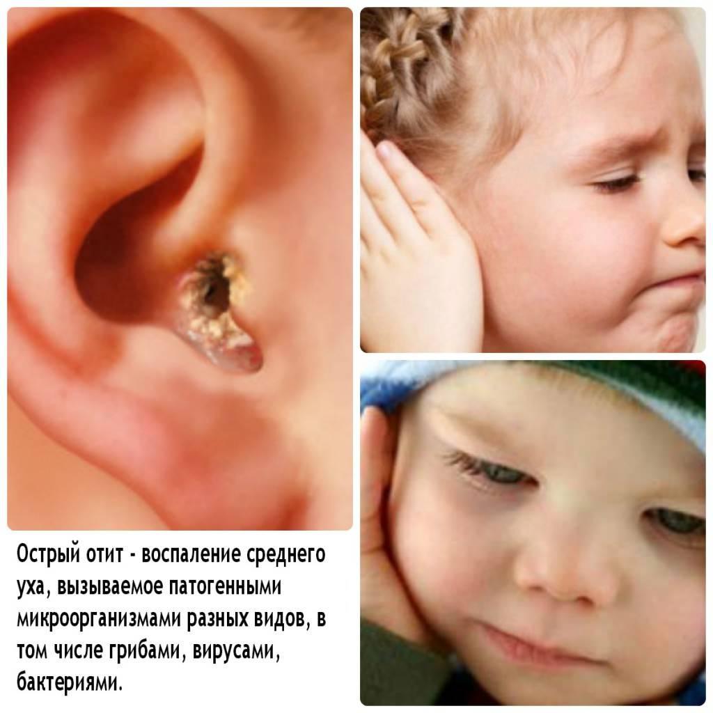прогревание уха при отите