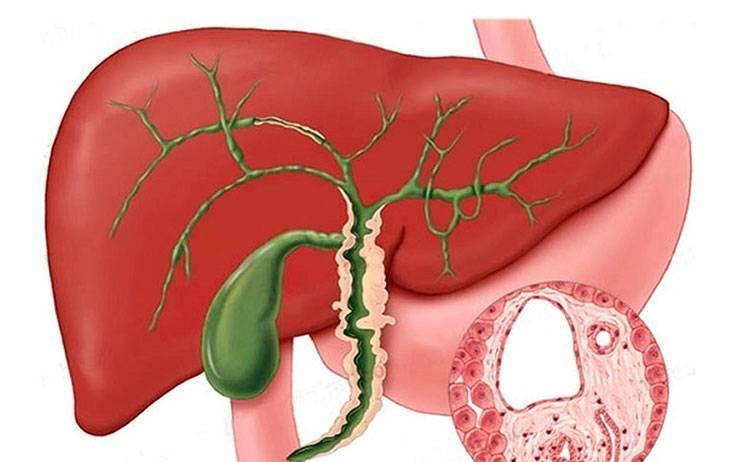 Опухоль желчного пузыря: симптомы и лечение