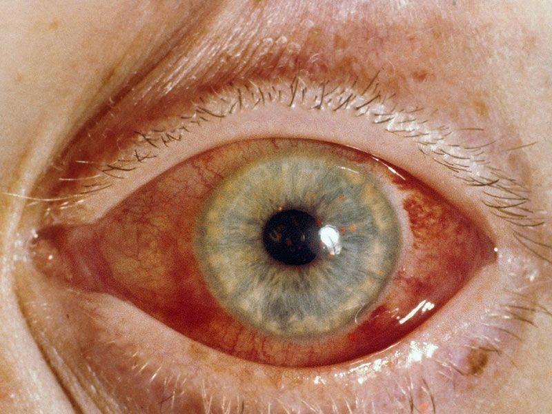 У кого может развится и чем опасна глаукома?