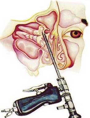 киста в носовой пазухе лечение