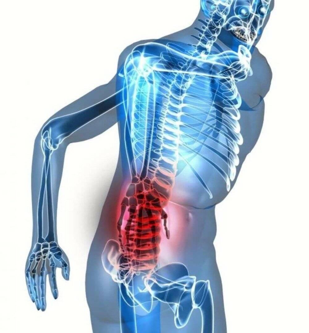 Клиническая картина и методы лечения мышечной невралгии
