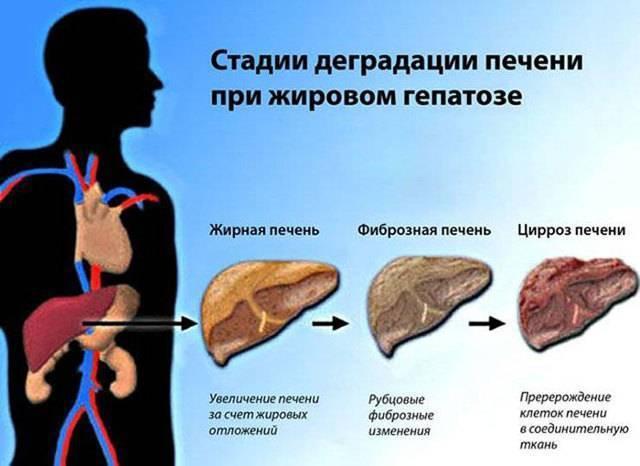 Алкогольный гепатоз: особенности заболевания